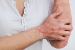 New Artificial Intelligence Powered tool to Diagnose Skin Problems